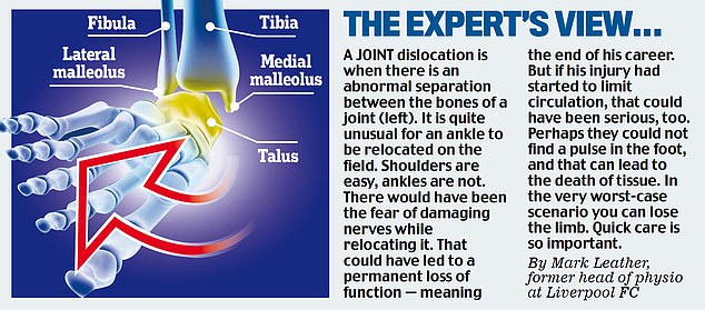 Gomes' injury could've resulted in more severe consequences according to another expert