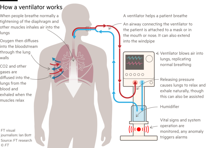 Diagram showing the basic operation of a medical ventilator
